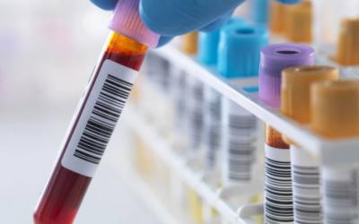 Detectar el riesgo genético de padecer Alzheimer con un análisis de sangre